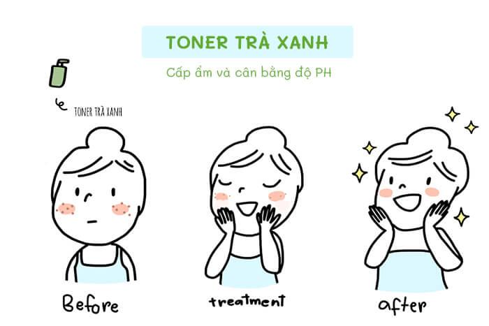 Toner cân bằng độ pH giúp da trị mụn hiệu quả